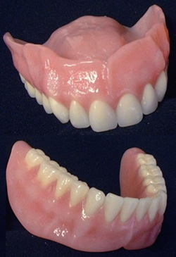 Oberkiefer ohne gaumenplatte zahnprothese Zahnprothesen: Arten,